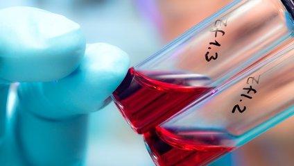Знайдено антитіла, які боряться майже з усіма штамами ВІЛу - фото 1
