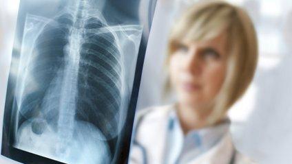 Флюорографія не є ефективною для запобігання туберкульозу - фото 1