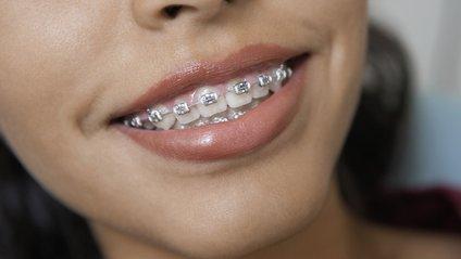 Найбільше шкодять здоров'ю зубів смажені баклажани, кабачки - фото 1