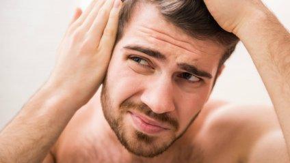 Облисіння у чоловіків може бути ознакою проблем зі здоров'ям - фото 1
