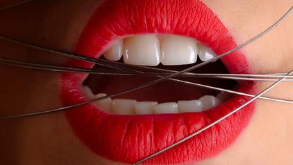 Ось як назавжди позбутися від проблем із зубами - фото 1