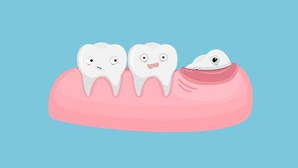Як вгамувати зубний біль - фото 1
