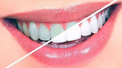 Що шкодить нашим зубам - фото 1