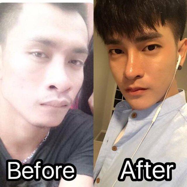 Чоловік зробив 30 косметичних операцій, щоб стати корейцем - фото 296495