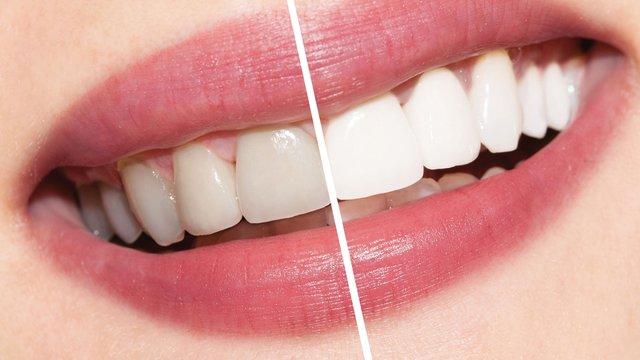 Відбілити зуби вдома дуже просто  - фото 327495
