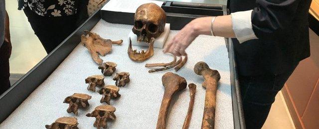 Науковці розкрили таємницю людини-вампіра - фото 345581