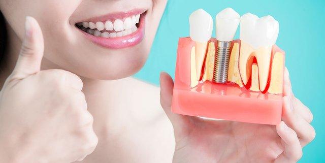 Як самостійно вгамувати біль від зуба мудрості: поради лікарів - фото 351408