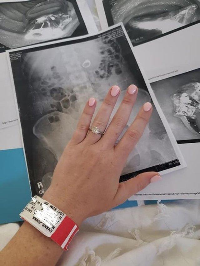 Дівчина з'їла свій перстень уві сні: її переслідували грабіжники - фото 355443