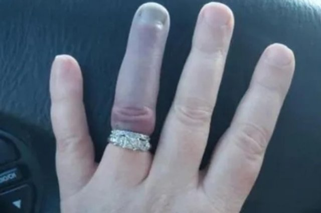 Почорнілий безіменний палець нареченої налякав мережу - фото 369131