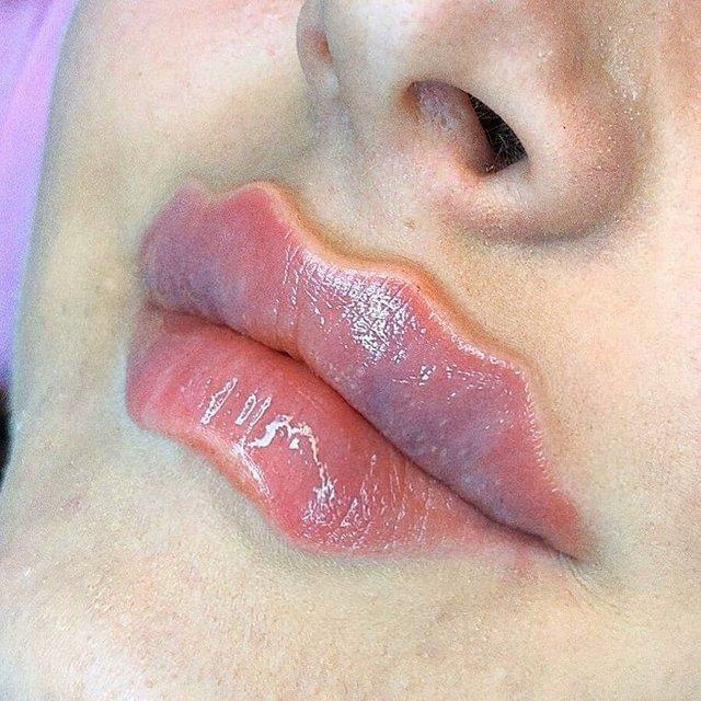Косметологічний тренд на нову форму губ  здивував інтернет: фотофакт - фото 371198