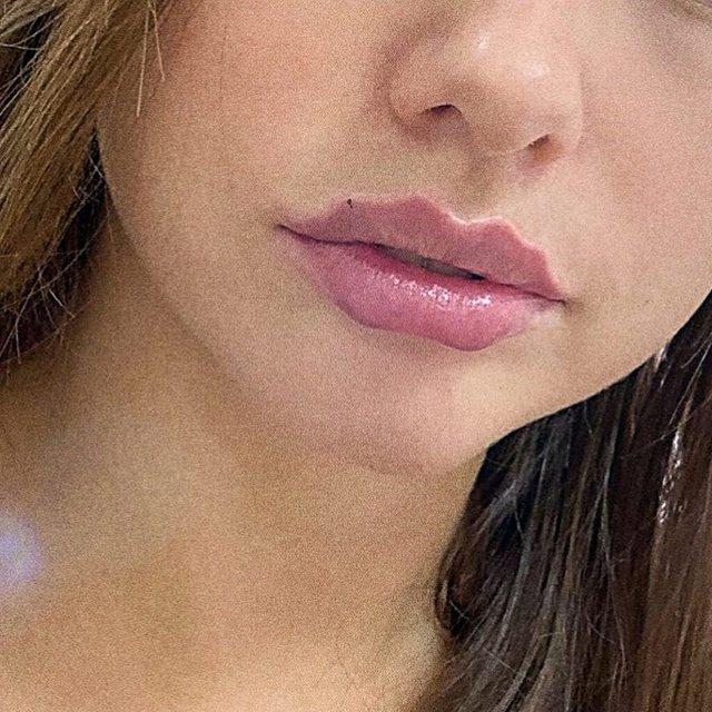Косметологічний тренд на нову форму губ  здивував інтернет: фотофакт - фото 371199