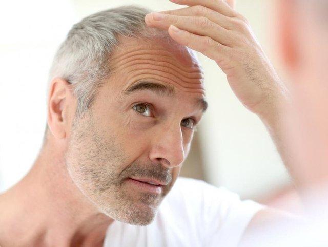 Учені знайшли спосіб повернути колір сивому волоссю - фото 407894