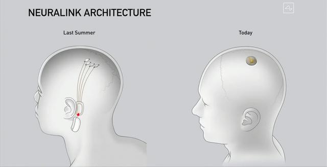 Гейтсу і не снилось: мозковий імплант Ілона Маска уперше показали в дії - фото 422702