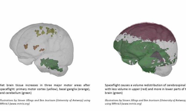 Вчені показали, як змінюється мозок у космосі - фото 424910